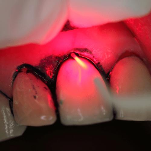 Antimikrobielle photodynamische Laser-Therapie, Abtötung der Bakterien durch Laser