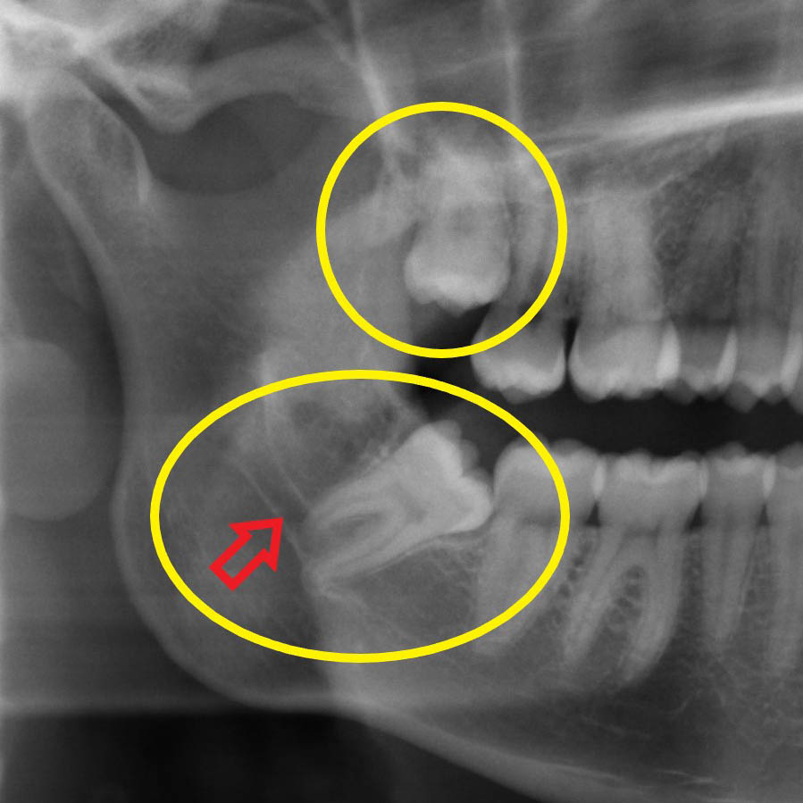 Mit Komposit gefüllter Zahn